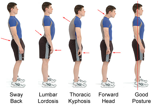 Secret Steps To Good Posture